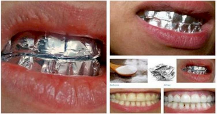 Отбеливание зубов в домашних условиях а 640