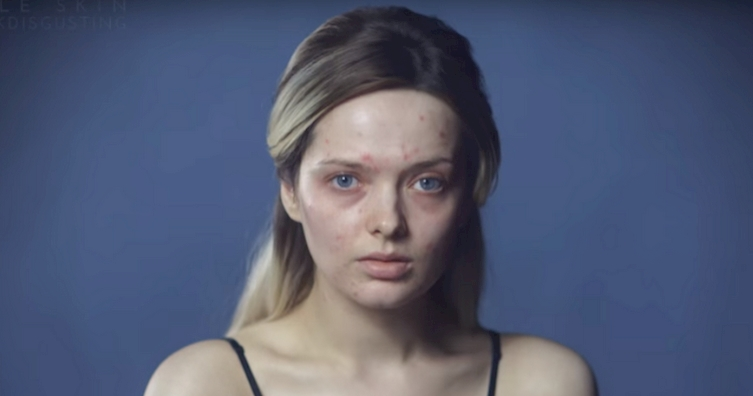 The Internet Called Her Disgusting, So She Removed Her Makeup, Showing Them They're Wrong